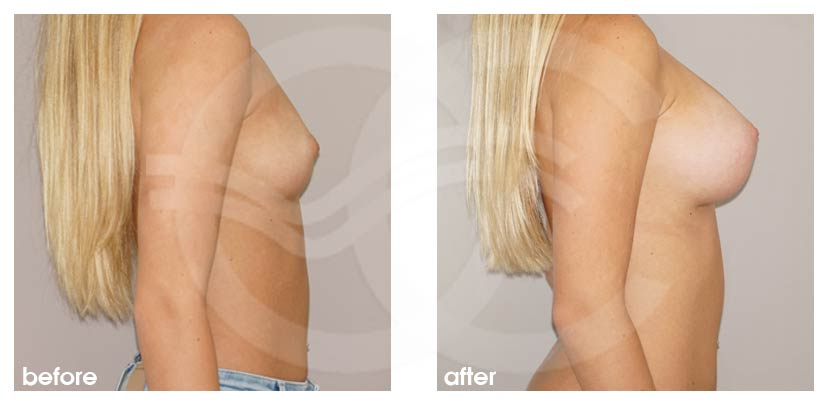 Breast Augmentation Before After Silicone Implants 300cc Anatomical High Profile Photo profile Ocean Clinic Marbella Spain