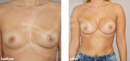 Breast Augmentation Before and After Photo Ocean Clinic Case 19 Marbella Spain