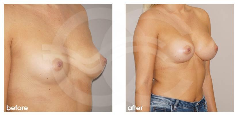 Augmentation Mammaire Avant Après grossir seins 280cc Implants Photo côté, Ocean Clinic Marbella