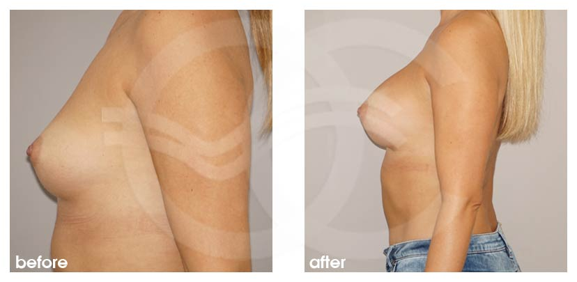 Breast Augmentation Before After Silicone Implants 280cc Anatomical High Profile Photo profile Ocean Clinic Marbella Spain