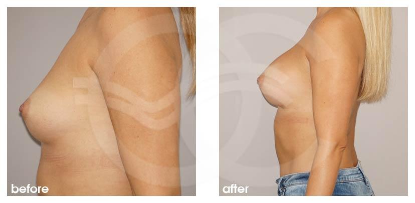 Augmentation Mammaire Avant Après grossir seins 280cc Implants Photo profil, Ocean Clinic Marbella