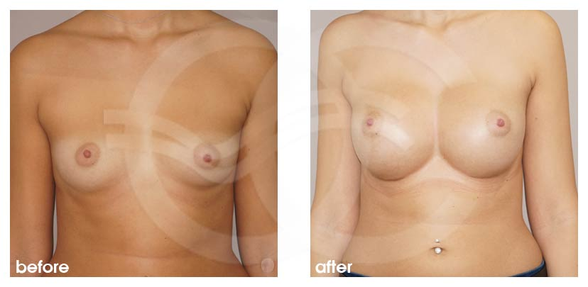 Breast Augmentation Before After Silicone Implants 485cc Anatomical High Profile Photo frontal Ocean Clinic Marbella Spain
