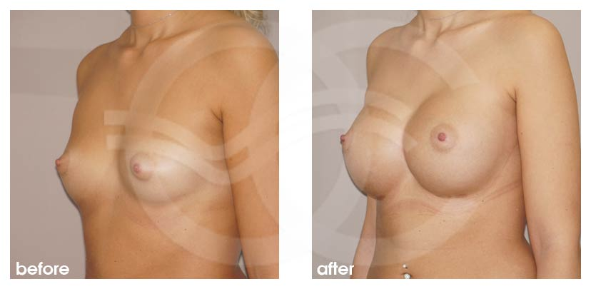 Breast Augmentation Before After Silicone Implants 485cc Anatomical High Profile Photo side Ocean Clinic Marbella Spain