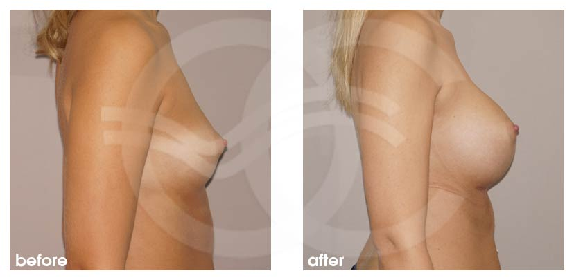 Breast Augmentation Before After Silicone Implants 485cc Anatomical High Profile Photo profile Ocean Clinic Marbella Spain