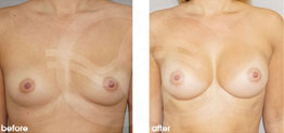 Breast Augmentation Before and After Photo Ocean Clinic case 21 Marbella Málaga