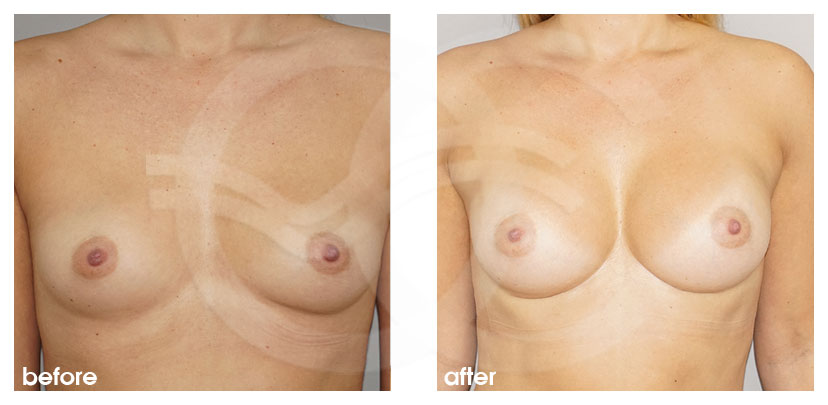 Breast Augmentation Before After Inframammary fold (IMF) approach Photo frontal Ocean Clinic Marbella Spain