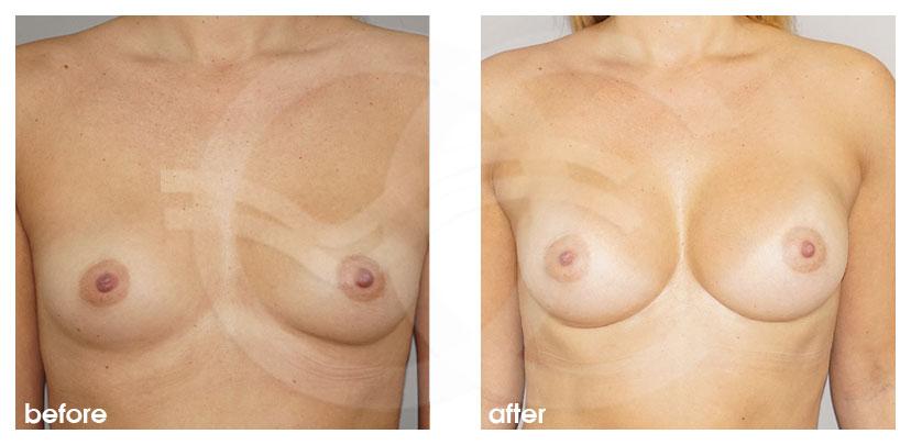 Brustvergrößerung Vorher Nachher Inframammäre Technik, Zugang durch die Brustumschlagfalte Foto vorne Ocean Clinic Marbella