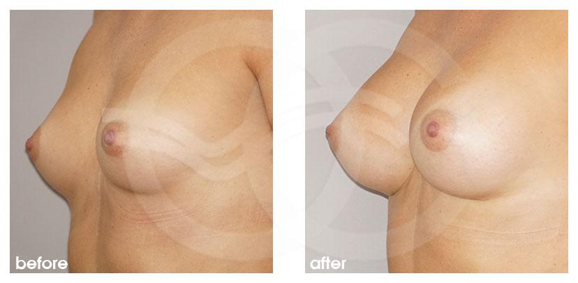 Brustvergrößerung Vorher Nachher Inframammäre Technik, Zugang durch die Brustumschlagfalte Foto seitlich Ocean Clinic Marbella