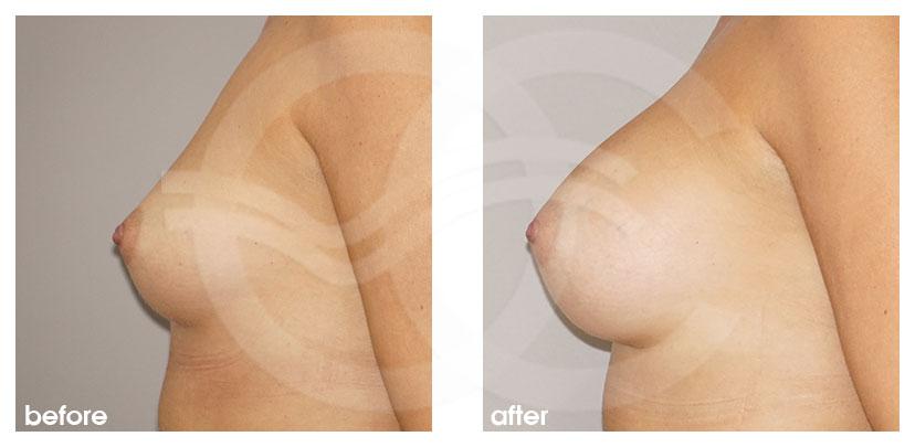Brustvergrößerung Vorher Nachher Inframammäre Technik, Zugang durch die Brustumschlagfalte Foto profil Ocean Clinic Marbella