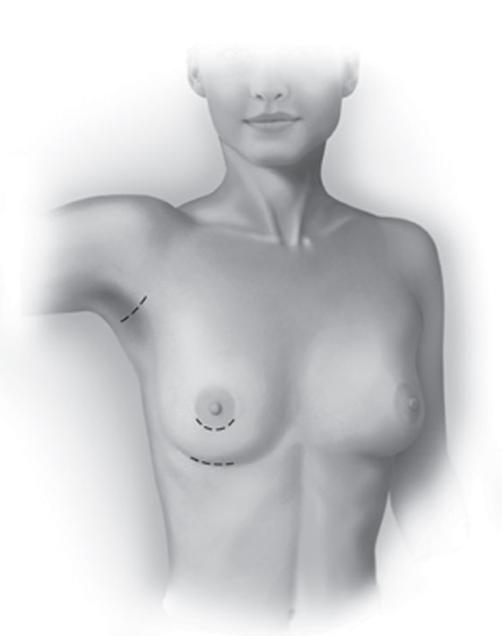 Breast Augmentation Implant Material and Surface. Marbella Ocean Clinic