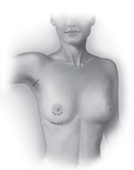 La operación para aumentar el pecho a través de implantes artificiales. Marbella Ocean Clinic