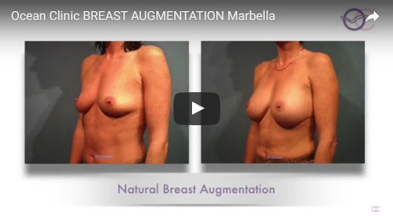 Augmentation Mammaire Résultat naturel Video Ocean Clinic Marbella