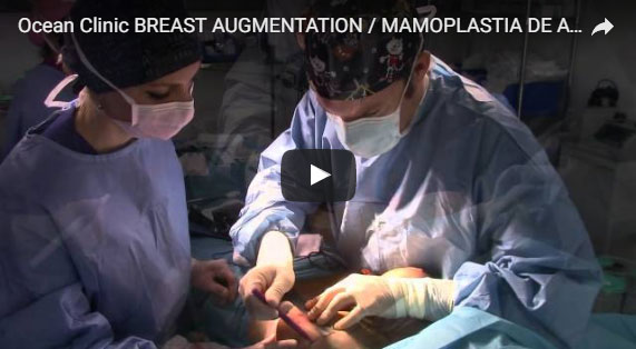 Augmentation Mammaire avec implants Video Ocean Clinic Marbella