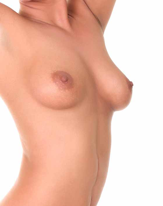Breast Lift Mastopexy Marbella Ocean Clinic