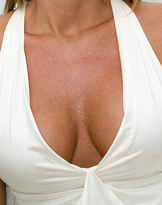 Breast Lift Technique Mastopexy Marbella Ocean Clinic