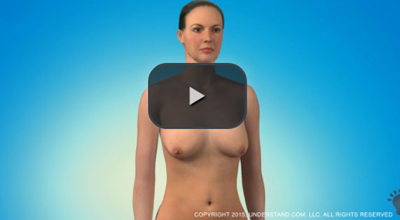 Breast Lift Animation Mastopexy Surgery Ocean Clinic Marbella