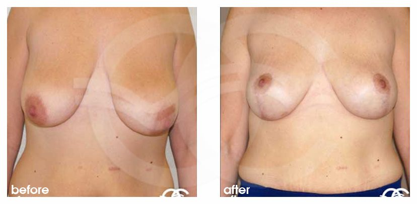 Mastopexy before and after real clinical case 03