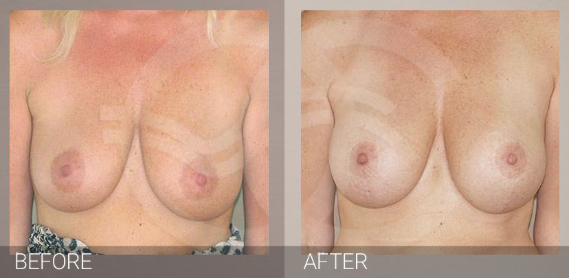 Mastopexy with implants photo before and after