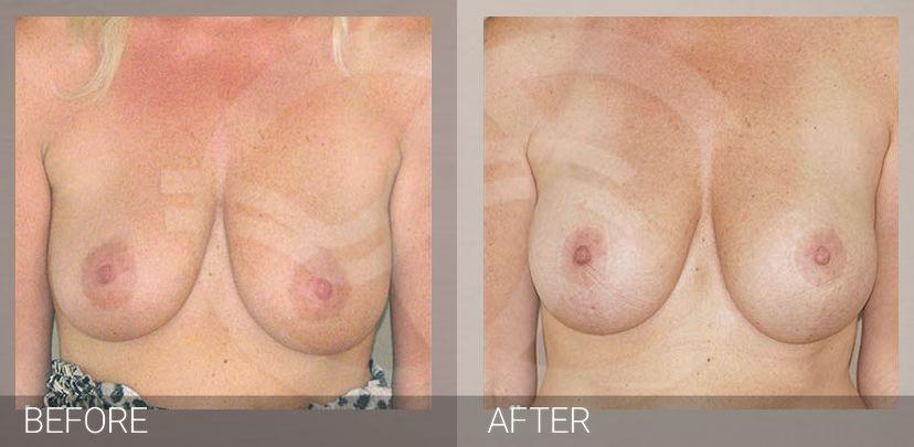 Levantamiento de senos con implantes foto antes y después