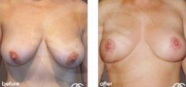 Breast Lift Before After Mastopexy Photo Ocean Clinic case 01 Marbella