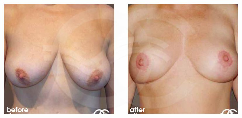 Breast Lift Breast Uplift ante/post-op profil