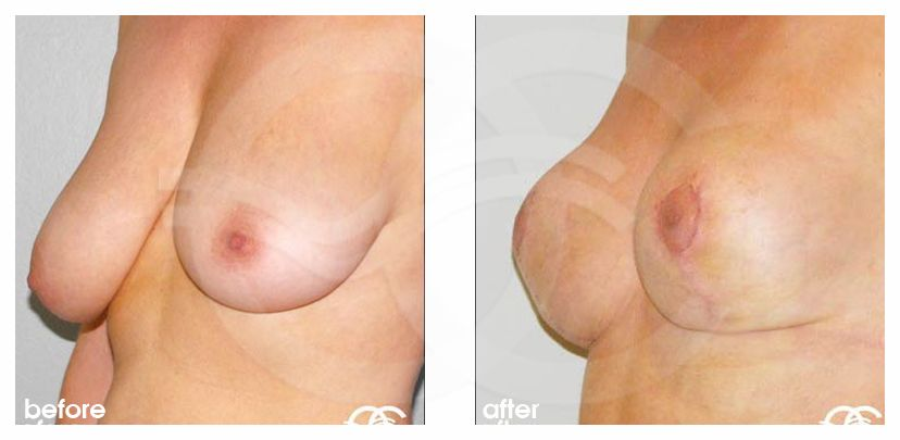 Breast Lift Before After Mastopexy Vertical Photo side Marbella Ocean Clinic