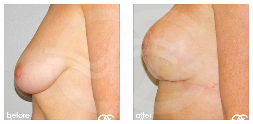 Breast Lift Before After Mastopexy Vertical Photo profile Marbella Ocean Clinic
