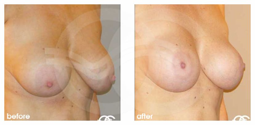 Breast Lift Before After Mastopexy Benelli Technique Photo frontal Marbella Ocean Clinic
