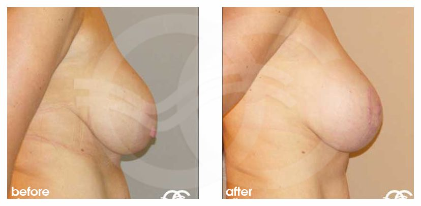 Breast Lift Before After Mastopexy Benelli Technique Photo side Marbella Ocean Clinic