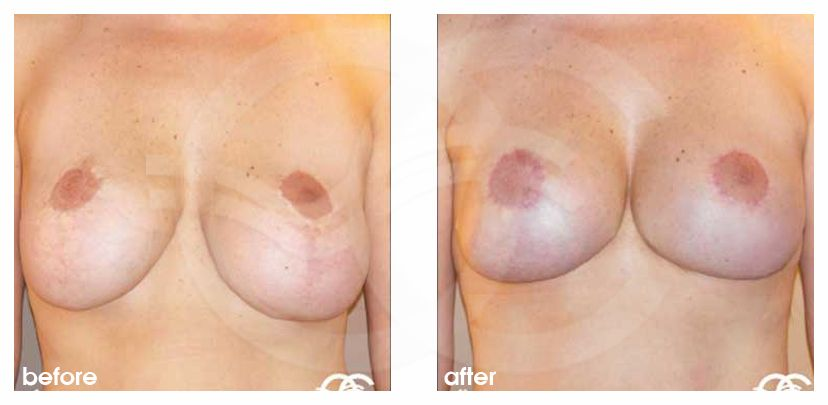 Breast Lift Before After Mastopexy Bottoming Out Photo frontal Marbella Ocean Clinic