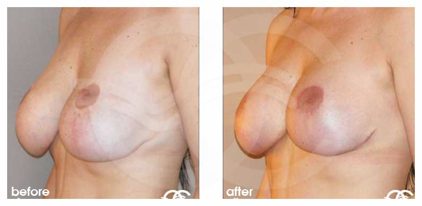 Breast Lift Before After Mastopexy Bottoming Out Photo side Marbella Ocean Clinic