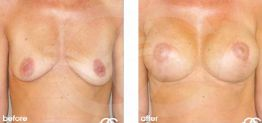 Breast Lift Before After Mastopexy Photo Ocean Clinic case 04 Marbella