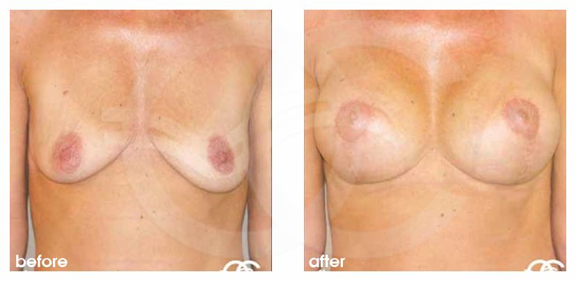 Breast Lift Before After Mastopexy 325cc Breast Implants Photo frontal Marbella Ocean Clinic