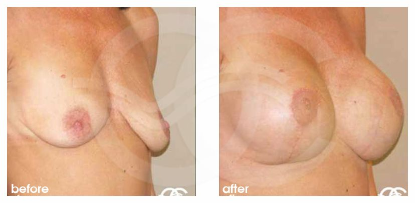 Breast Lift Before After Mastopexy 325cc Breast Implants Photo side Marbella Ocean Clinic