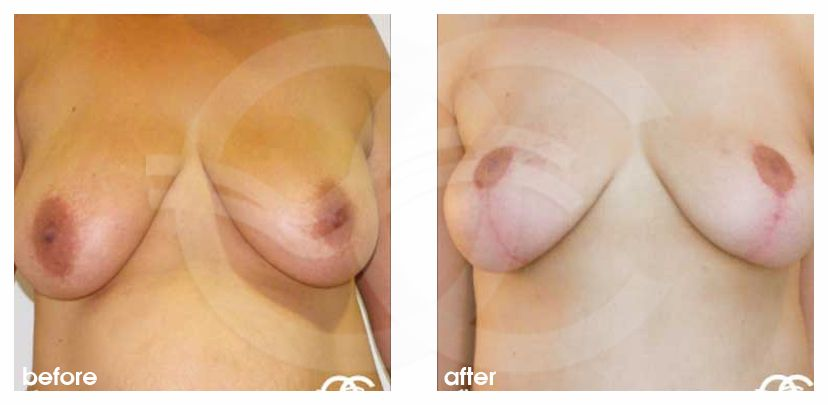 Breast Lift Before After Mastopexy Vertical Incision Technique Photo frontal Marbella Ocean Clinic