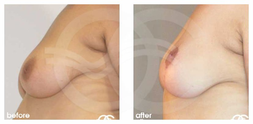 Breast Lift Vertical Incision before after perfil