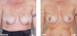 Breast Lift Before After Mastopexy Photo Ocean Clinic case 06 Marbella