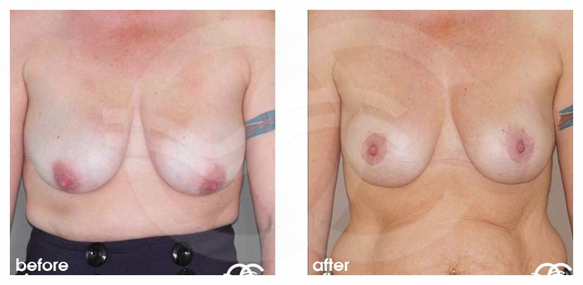 Breast Lift Before After Mastopexy Vertical Scar Photo frontal Marbella Ocean Clinic