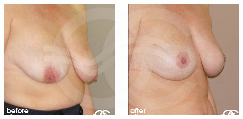 Breast Lift Before After Mastopexy Vertical Scar Photo side Marbella Ocean Clinic