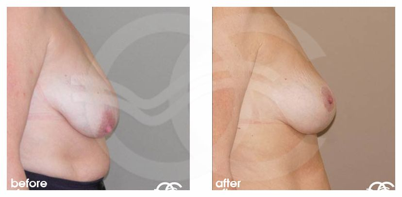 Breast Lift Before After Mastopexy Vertical Scar Photo profile Marbella Ocean Clinic