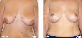 Breast Lift Before After Mastopexy Photo Ocean Clinic case 07 Marbella