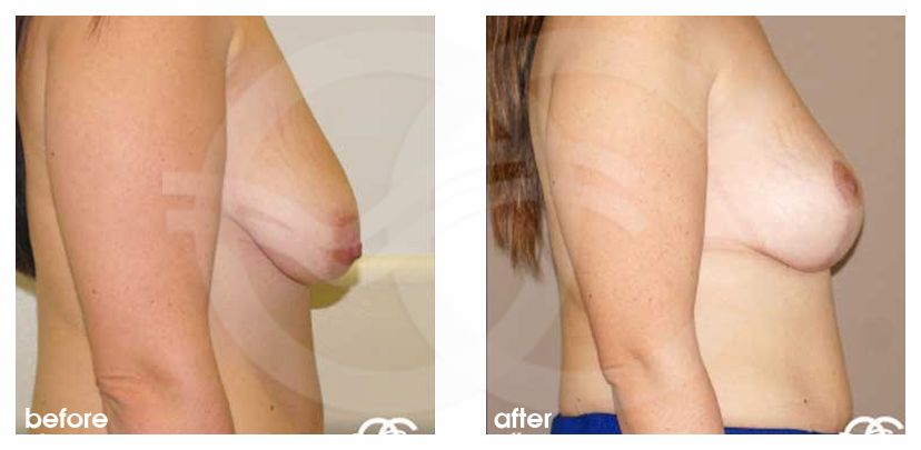 Bruststraffung Anker-Lift before after perfil
