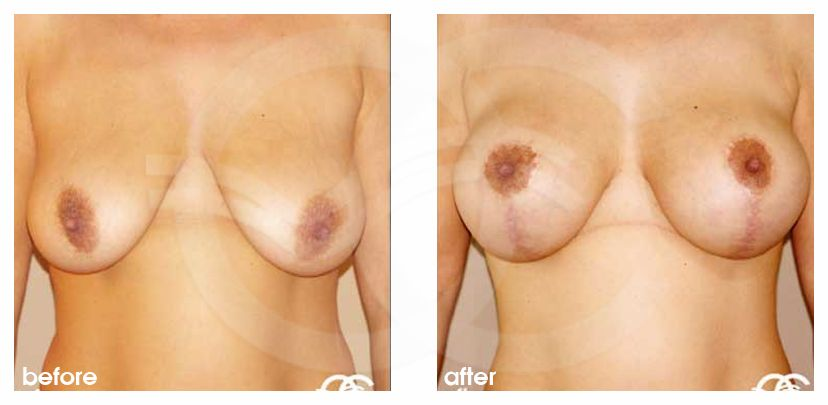 Breast Lift Uplift with 335cc Anatomic Implants before after forntal