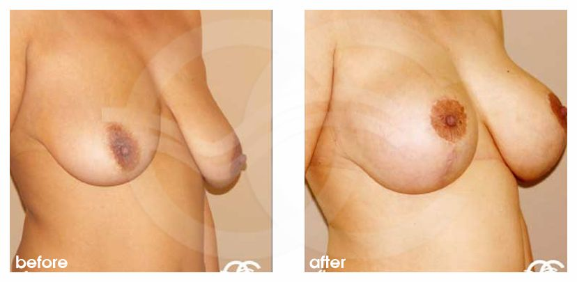 Breast Lift Uplift with 335cc Anatomic Implants before after side