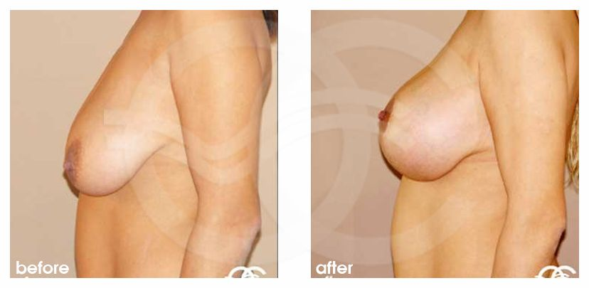 Breast Lift Uplift with 335cc Anatomic Implants before after perfil