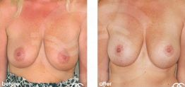 Breast Lift Before After Mastopexy Photo Ocean Clinic case 09 Marbella