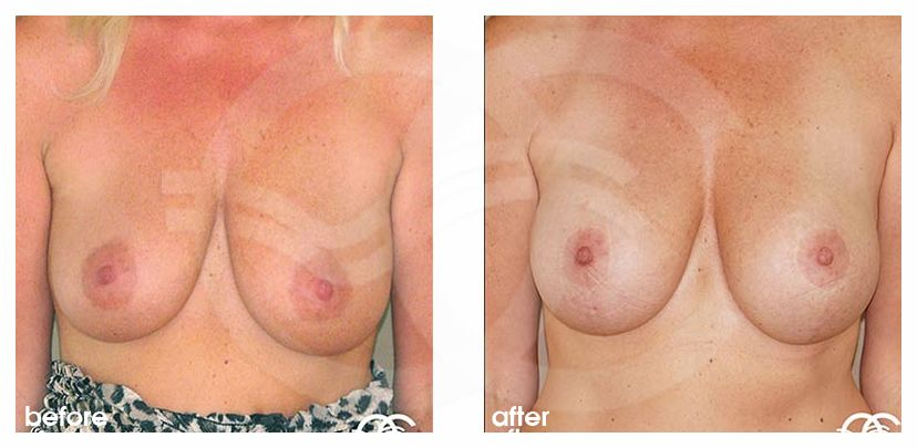 Breast Lift Before After Mastopexy 350cc Breast Implants Photo frontal Marbella Ocean Clinic