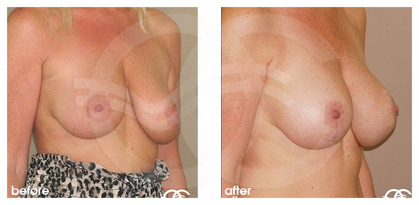 Breast Lift Before After Mastopexy 350cc Breast Implants Photo side Marbella Ocean Clinic
