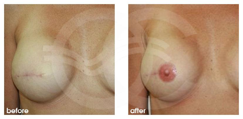Reconstrucción Mamaria Antes y Después Pigmentación Areolar. Marbella Ocean Clinic