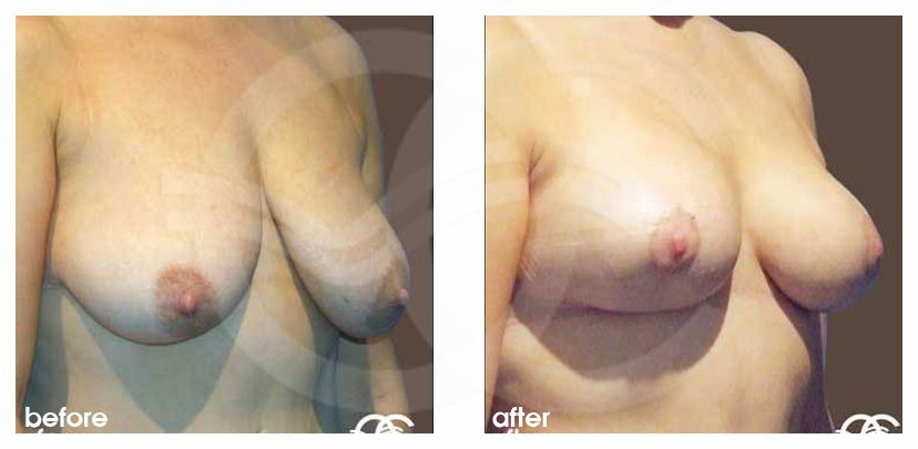 Breast Reconstruction Before and After Photo after Tissue Loss. Marbella Ocean Clinic